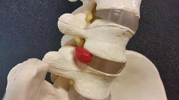 Acute Spine Injuries